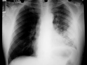 ... and the patient was moving freely there was clearing of the post-consolidation pneumonitis though there was residual tenting of the diaphragm laterally. & Decortication